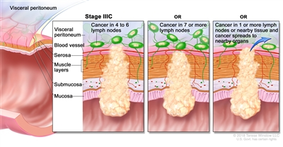 Stage IIIC colorectal cancer; drawing shows a cross-section of the colon/rectum and a three-panel inset. Each panel shows the layers of the colon/rectum wall: the mucosa, submucosa, muscle layers, and serosa. Also shown are a blood vessel and lymph nodes. The first panel shows cancer in all layers, in 4 lymph nodes, and in the visceral peritoneum. The second panel shows cancer in all layers and in 7 lymph nodes. The third panel shows cancer in all layers, in 2 lymph nodes, and spreading to nearby organs.